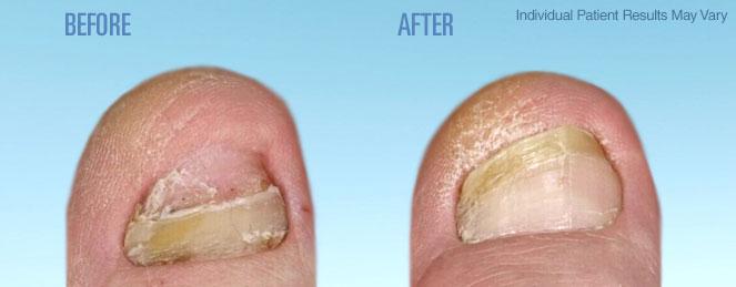 Dr Vick S La Medical Spa Laser Nail Fungal Treatment